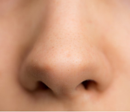 Difference between Blackheads and Sebaceous Filaments